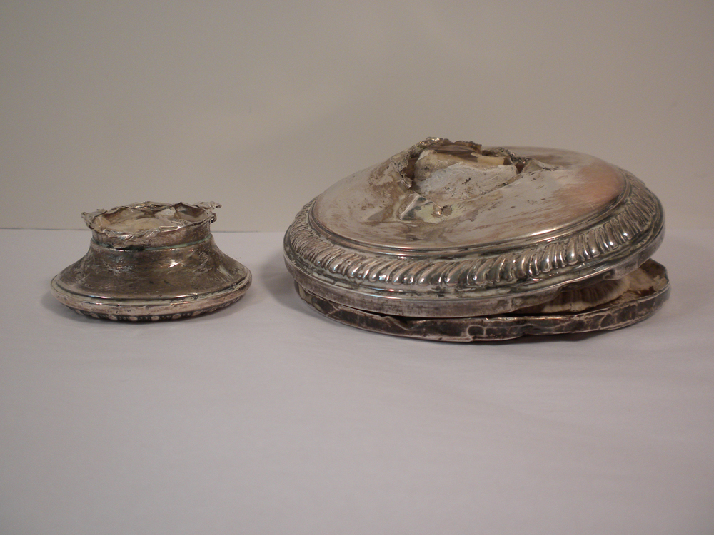 Silver Related Restoration-1